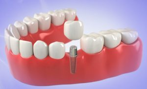 Dental Implants Replace Missing Teeth